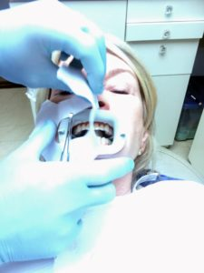 """Next, the mouth is forced open by a """"medieval"""" type piece of equipment, exposing the upper and lower teeth and keeping the lips away from the work area."""