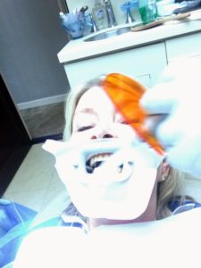 After the application of gelatinous bleach, a light is focused on the teeth to speed up the action of the bleach- just like the heat hairdressers use to speed up the bleaching of hair!