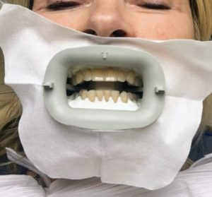 """The fabric protects my skin. This is a better view of the """"dam"""" of material protecting the gums. My teeth don't look so dark and I am wondering why I am doing this!"""
