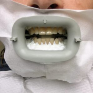 I am very lucky to have such good, straight teeth- I thank my genes for this- no braces, no caps, no veneers!